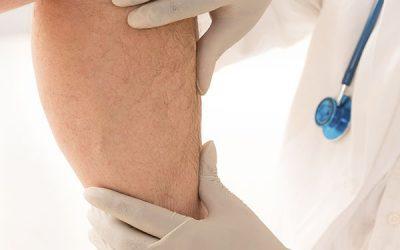 cirugia-vascular-periferica